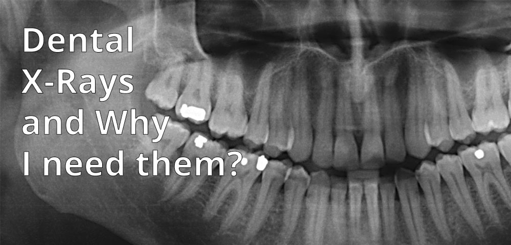 Dental X-Rays and Why I need them?