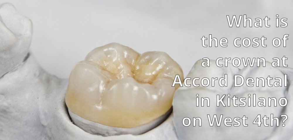 What is the cost of a crown at Accord Dental in Kitsilano on West 4th?